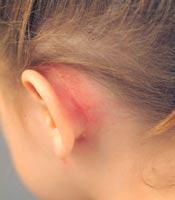 Покраснение за ухом при мастоидите