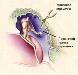 Установка протеза при стапедэктомии