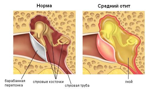 Схема воспаления при среднем отите