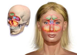 Этмоидит: симптомы