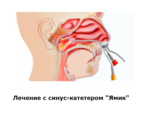 Лечение гайморита Ямик-катетером