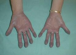Синюшность пальцев рук