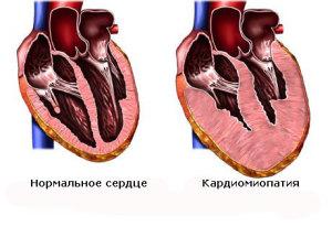 Сравнение размеров сердца