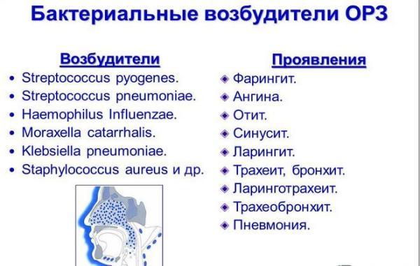 Бактериальные возбудители ОРЗ