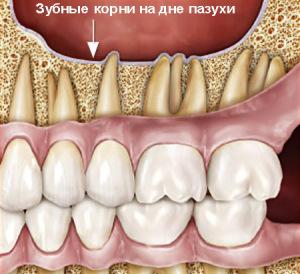 Корни зубов на дне гайморовой пазухи