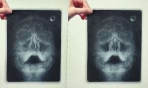 Рентген гайморита