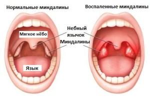 Воспаленные миндалины при ангине