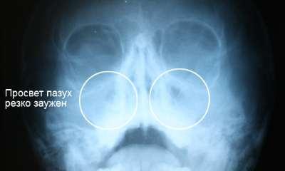 Гайморит рентген
