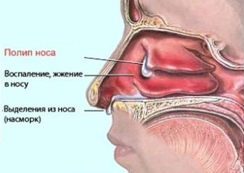 Единичный полип в носу