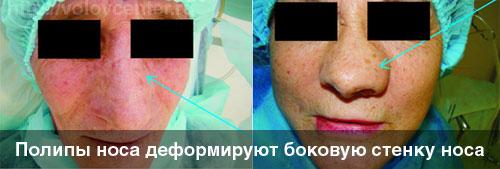 Деформация носа при полипах