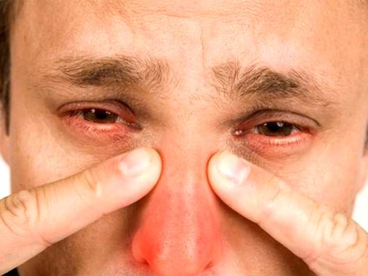 Осложнения на глазах при гайморите