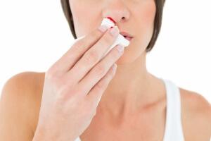 Кровотечение из носа у взрослого