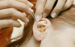 Применение ушных капель для удаления серной пробки